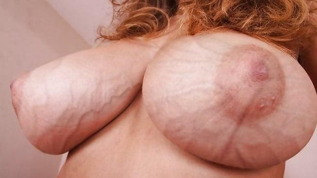 Asian tits veins