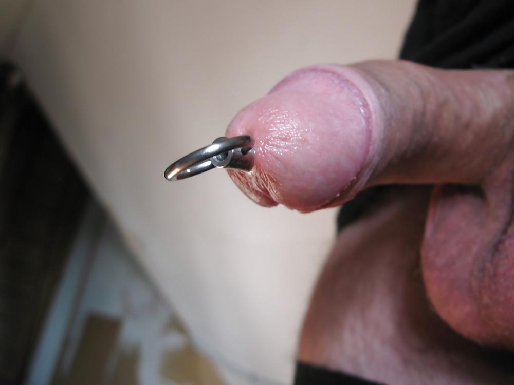 Metal urethral stretching