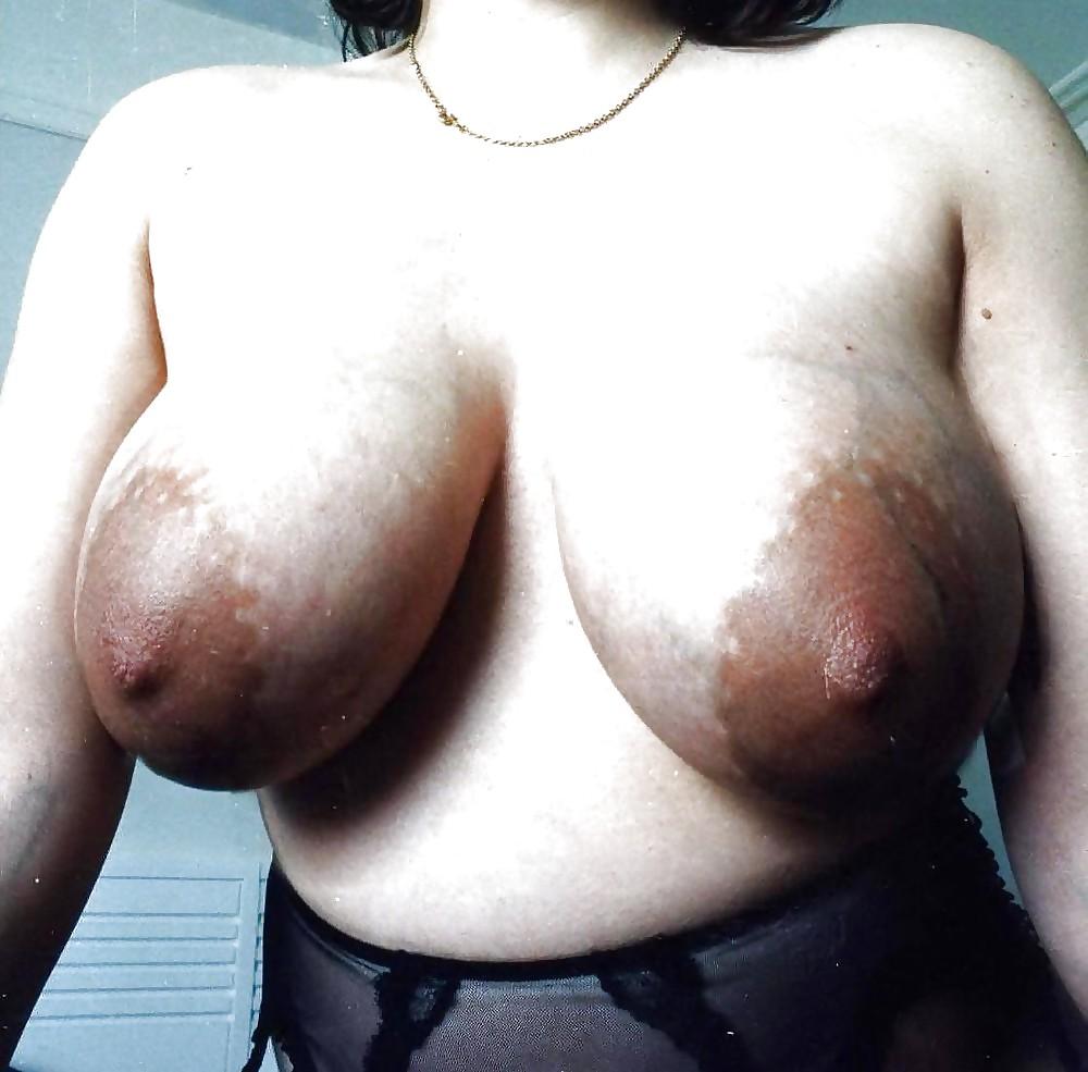 Swollen tits pics #11