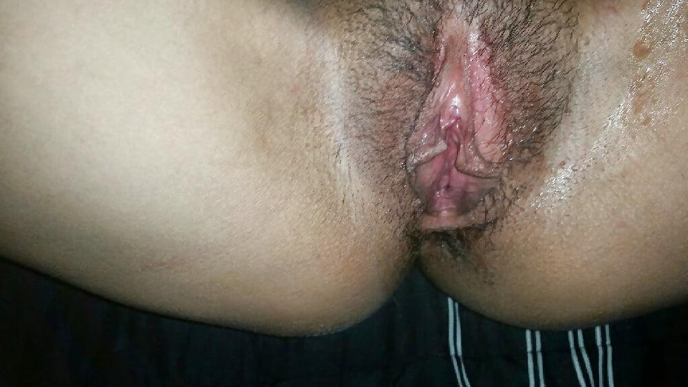 Teen anal nasty herpes pussy black