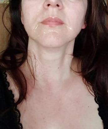 Blasen Im Gesicht