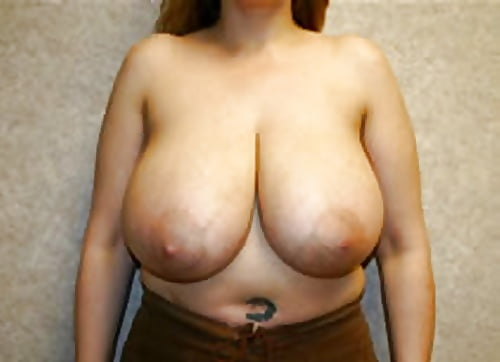 Breast lift areola reduction cost-9908