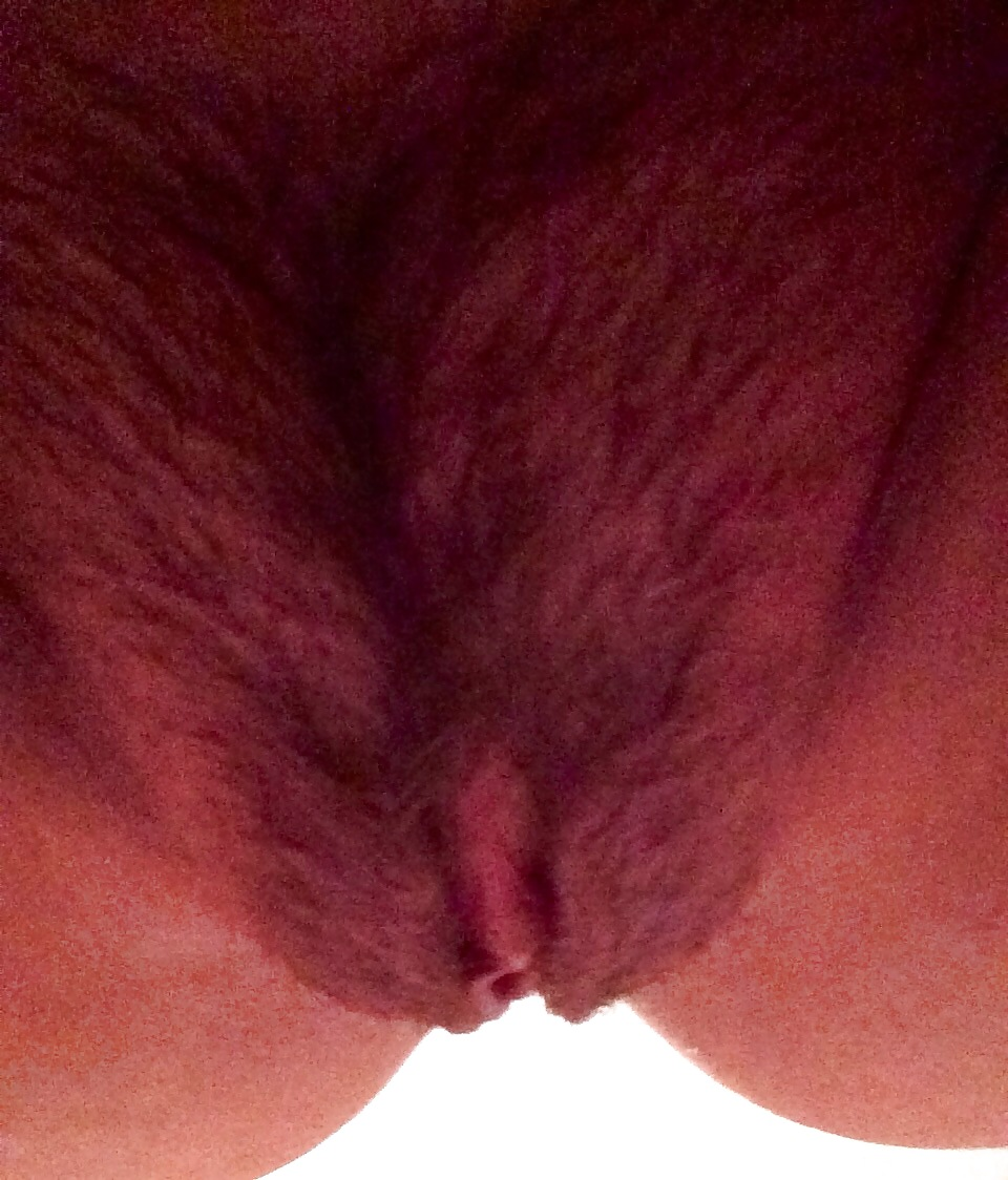 Can not they shaved my pussy before surgery are