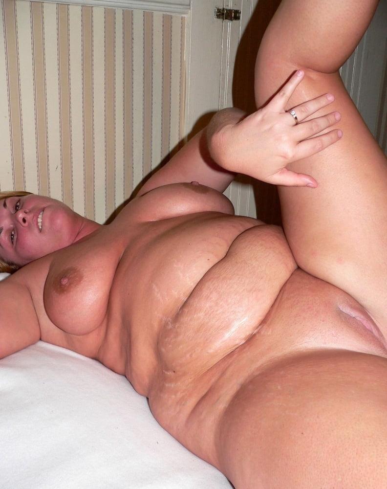 Mature stretch mark porn