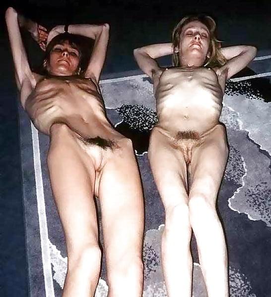 порно очень худых девушек дистрофиков - 5