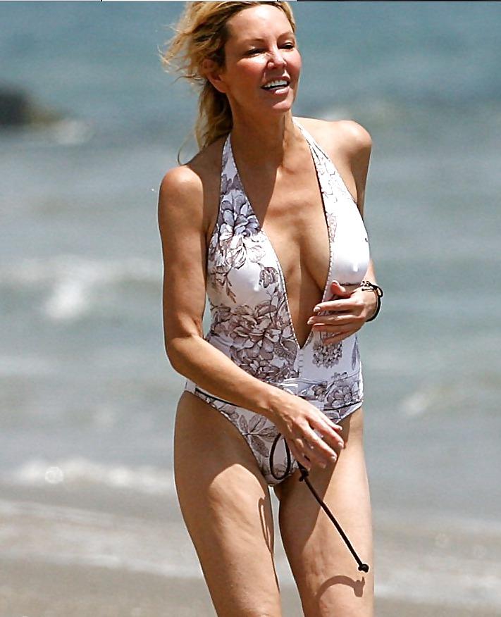 Heather locklear breast implants