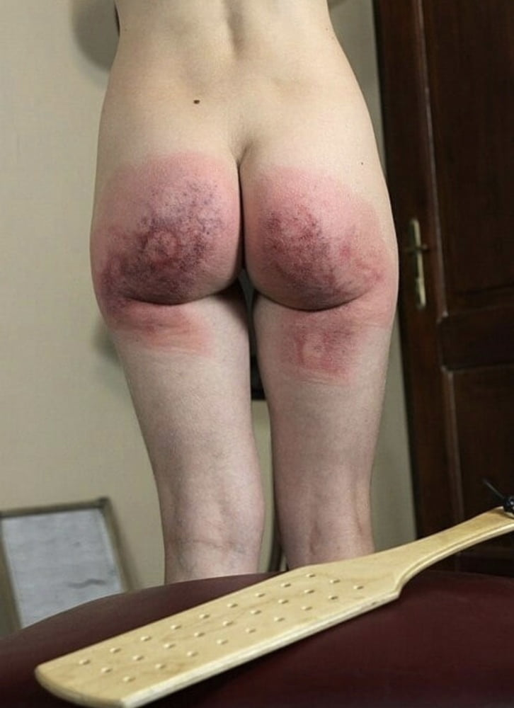 What does a vagina look like after a hysterectomy-4568