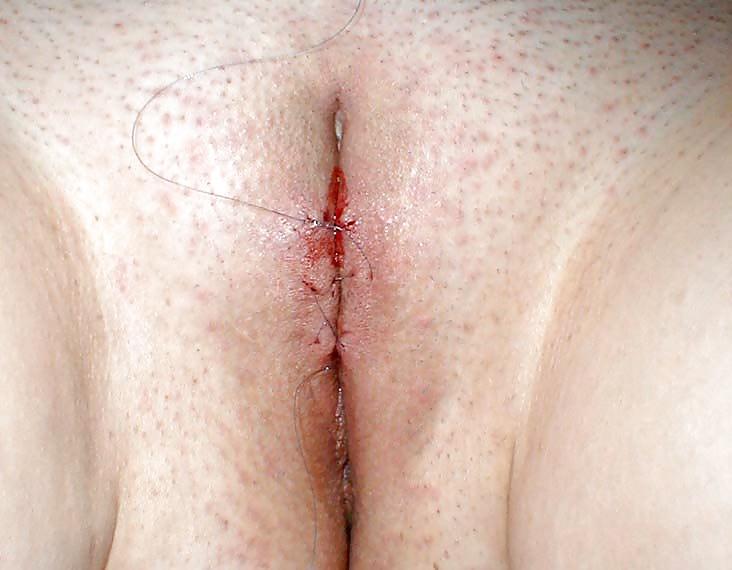 Vulval cancer surgery