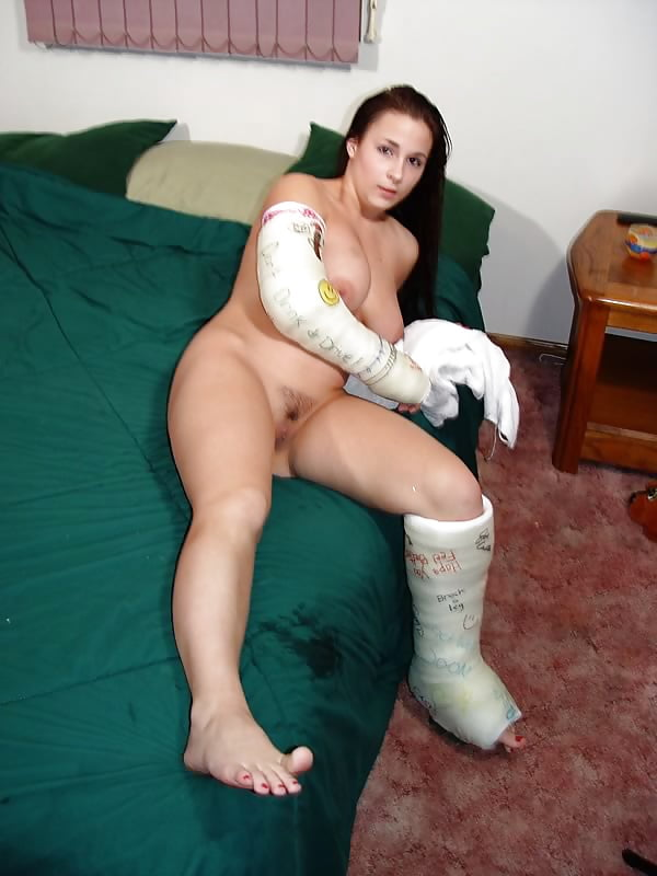 in-a-leg-cast-having-sex-young-nudism-famiy