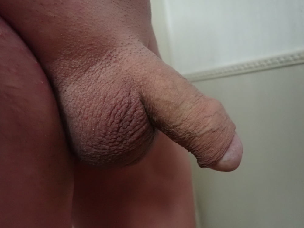 Why my penis smells bad