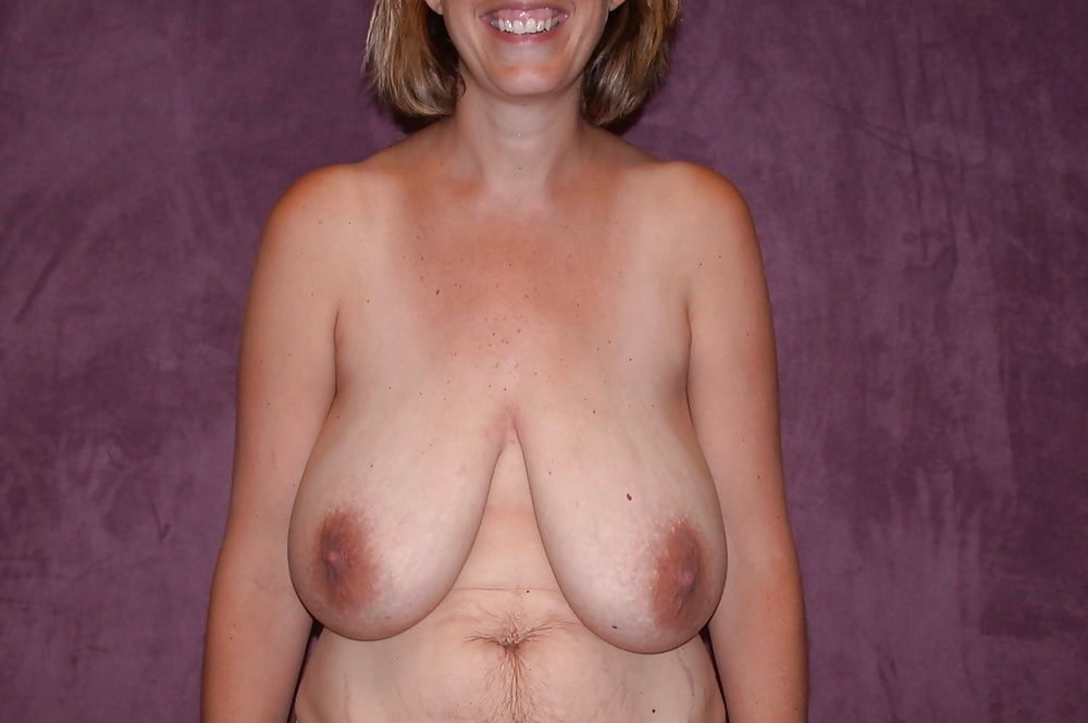 Concerned About Saggy Breasts