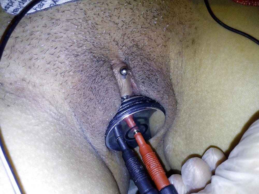 Electrostimulation sperm collection high girls getting