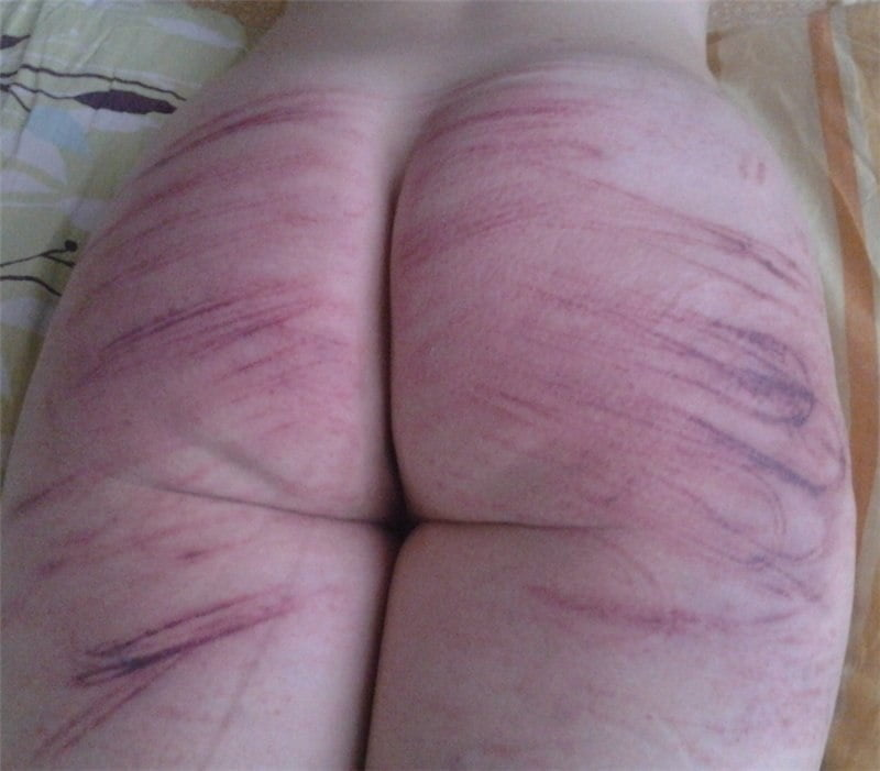 What does a vagina look like after a hysterectomy-2623