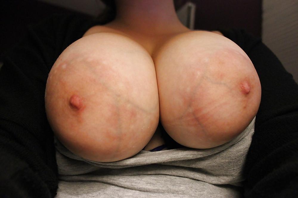 Sex pics free pics blue vein tits girl