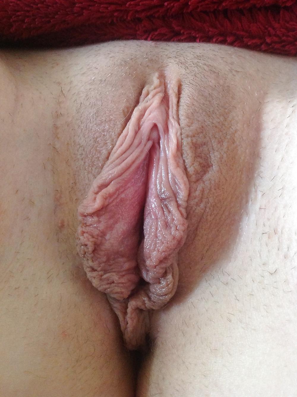 гигантские малые половые губы - 7