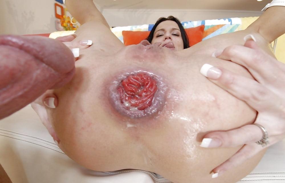 последствия после жесткого секса фото