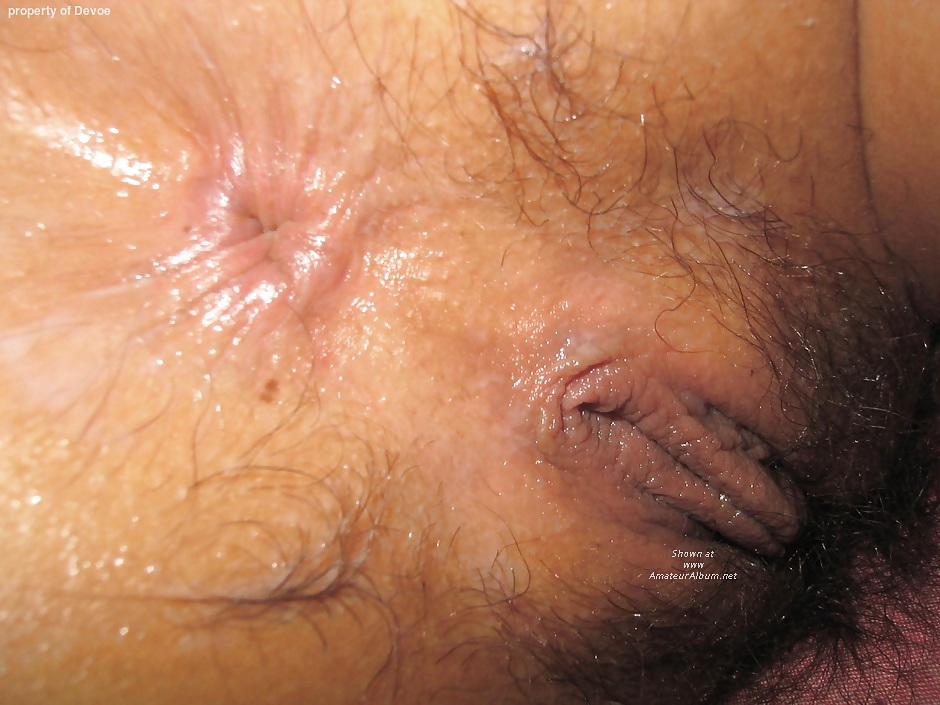 Flab skin near anus, young south african porn