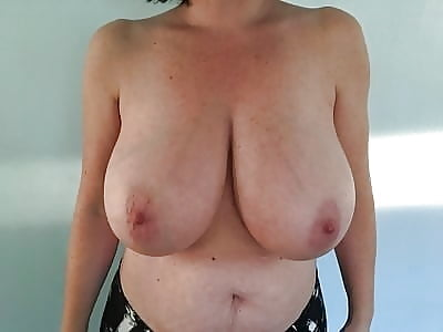 Breast lift areola reduction cost-4554