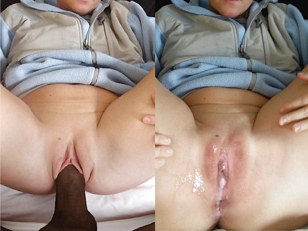 Vulvar Swelling And Bruising