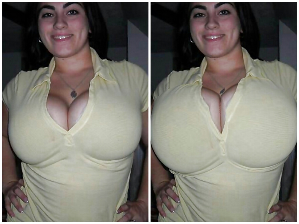 Breast lift vs breast augmentation vs breast implants what's the difference