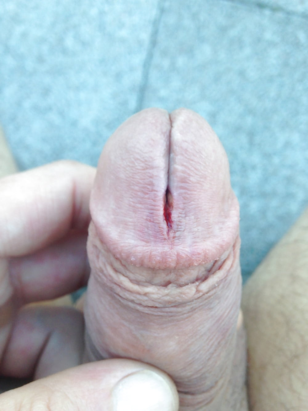 Message Penis glans pics opinion you