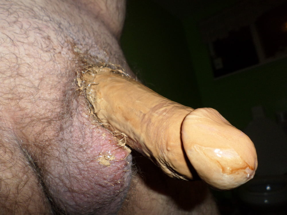 Cyst On Penis