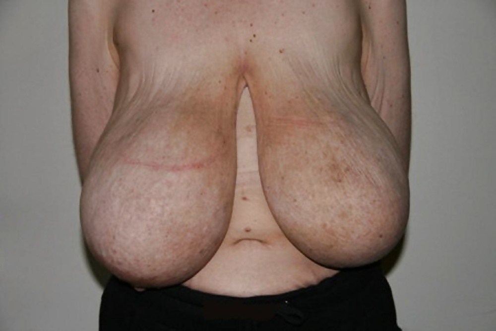 normal-sized-black-breasts